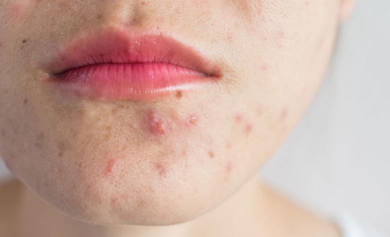 Hudbesvär, acne på hakan.