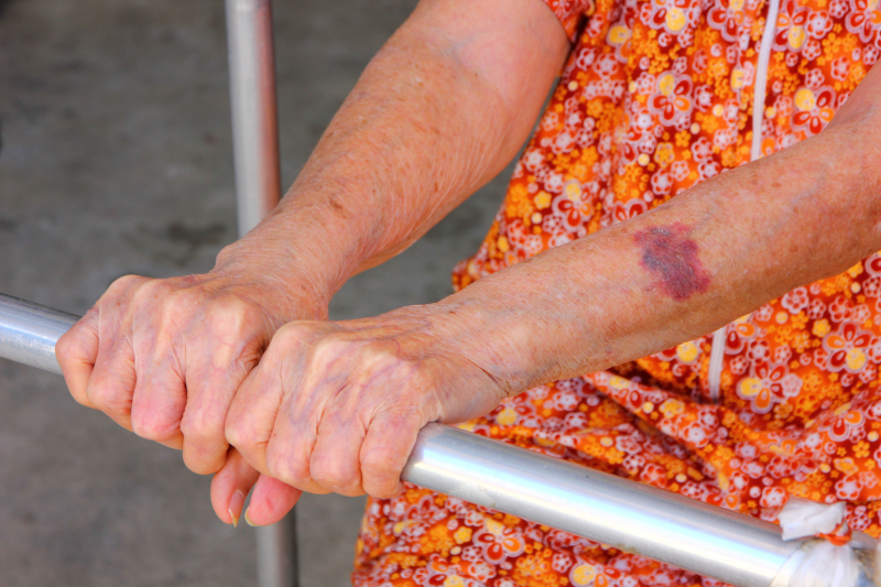 Äldre extra utsatta för våld i nära relationer