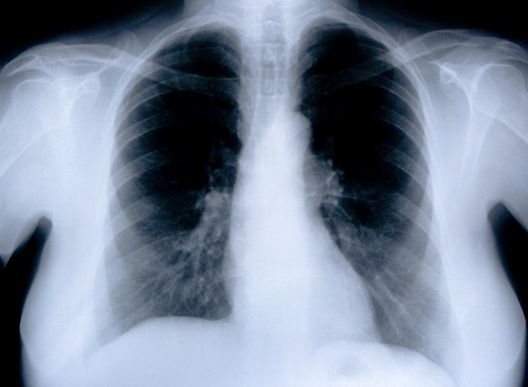 Delar av röntgensvar försvann spårlöst