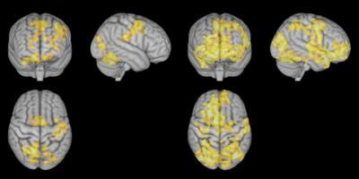 Meditation låter din hjärna vila