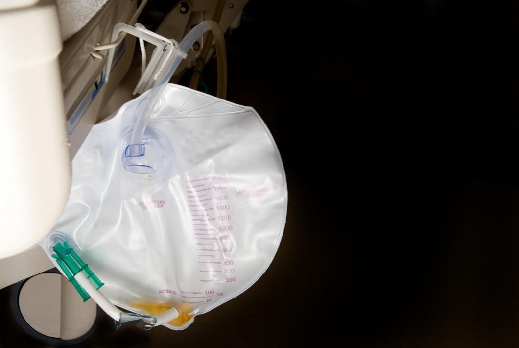 Kortad tid med kateter gav färre urinvägsinfektioner