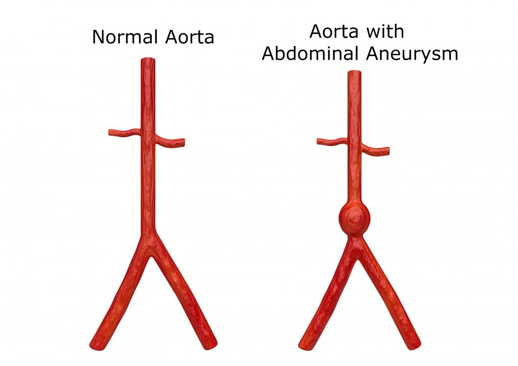 Färre dör av aortabråck