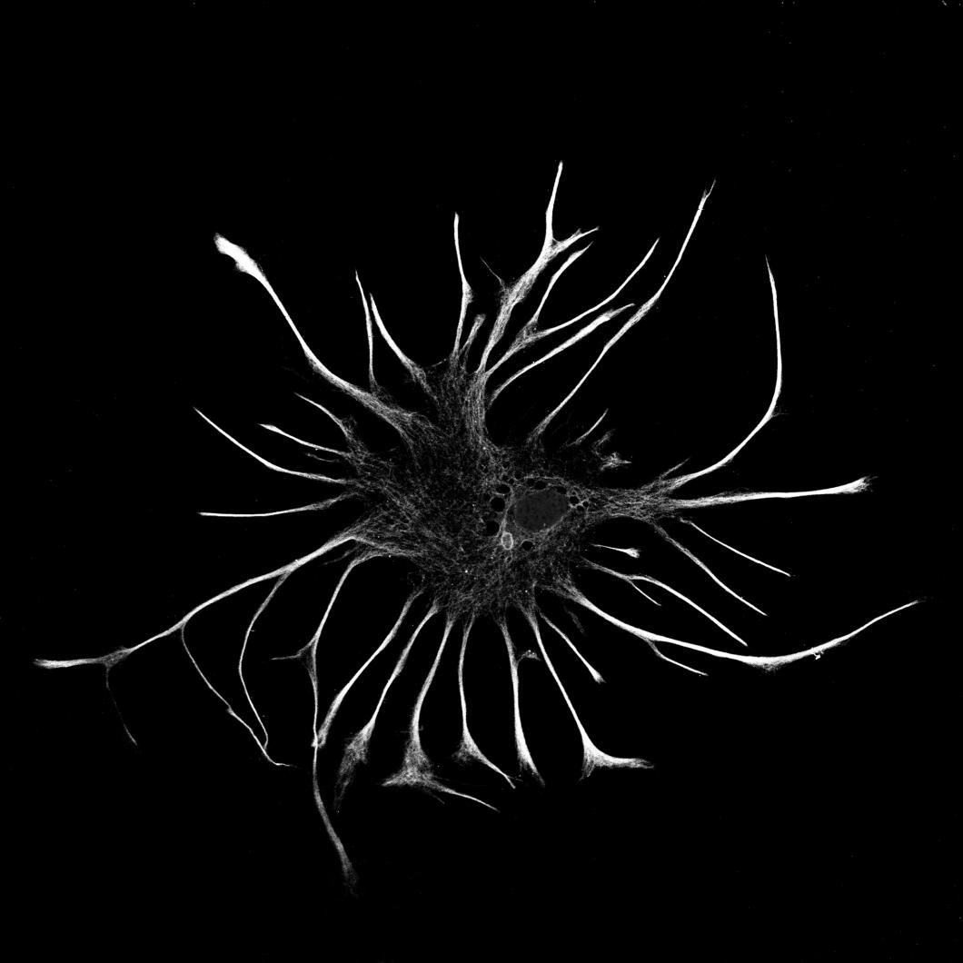 Svartvit hjärncell vann fotopris
