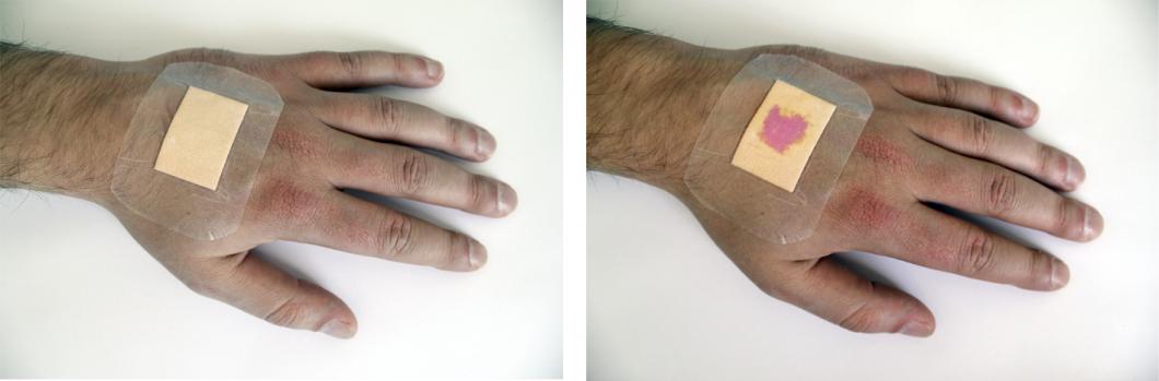 Nytt plåster visar läkningsprocessen