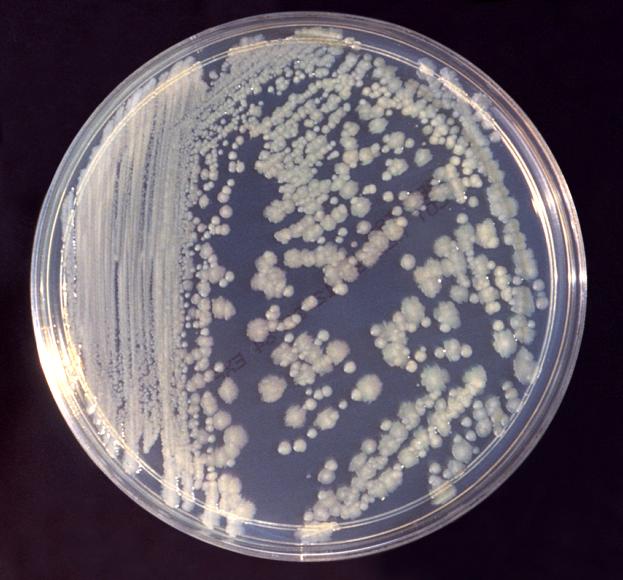 Ny kunskap om hur resor sprider resistenta bakterier
