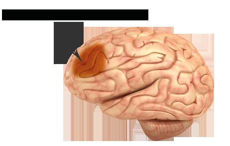 Osäkert om magnetstimulering av hjärnan lindrar depression
