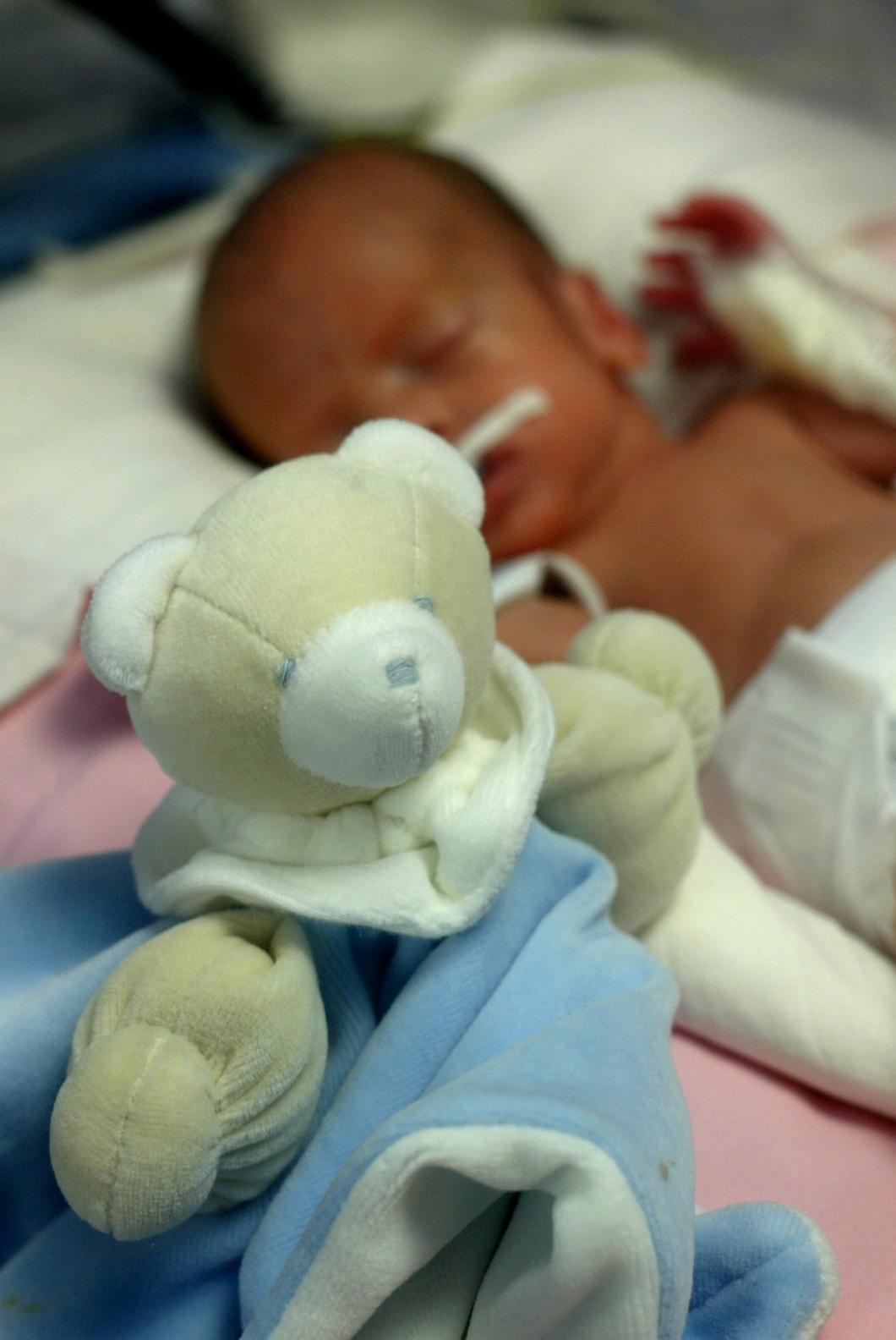 Extremt för tidigt födda får större risk för sämre tal och motorik