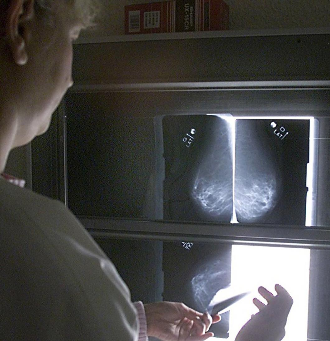 150 fick förhöjd stråldos vid mammografi
