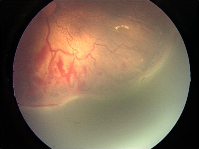 Färre prematura barn behöver screenas för ögonsjukdom