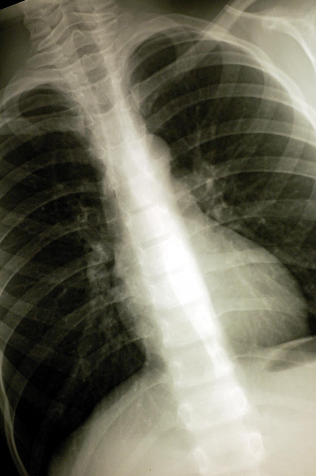 Miss i röntgensystemet kan ha lett till fördröjd diagnos