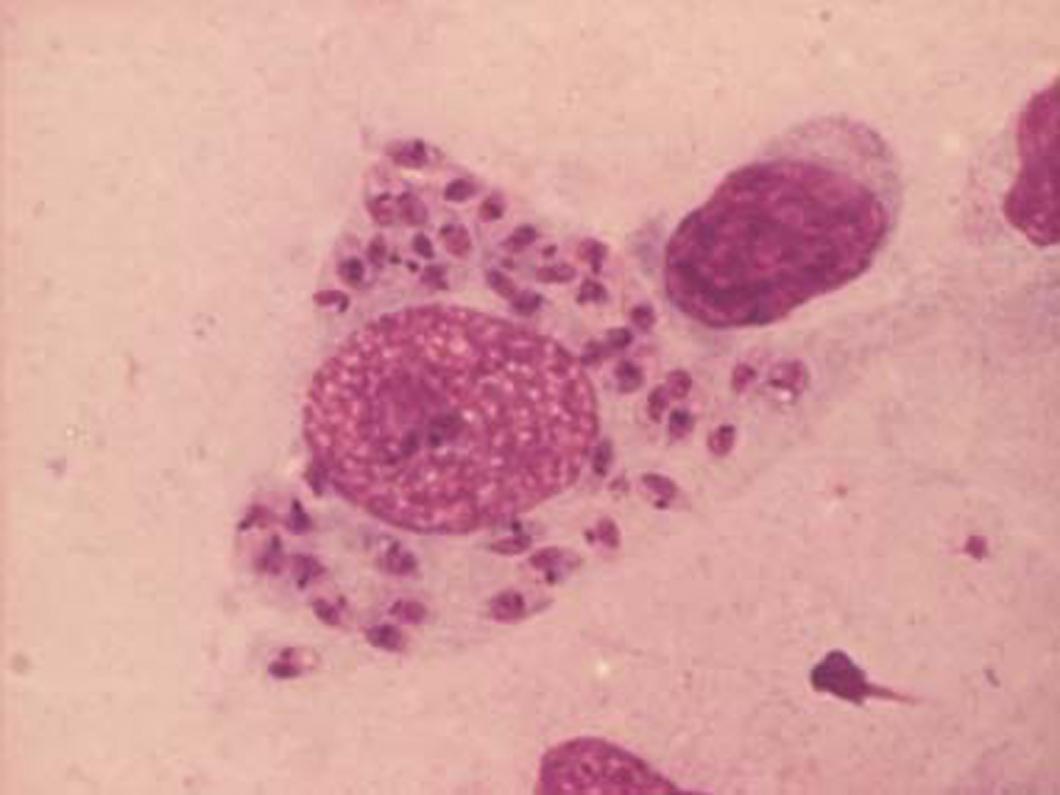 Snabbare diagnostik av leishmania med PCR