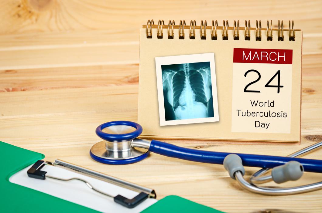 Antalet fall av tuberkulos minskar