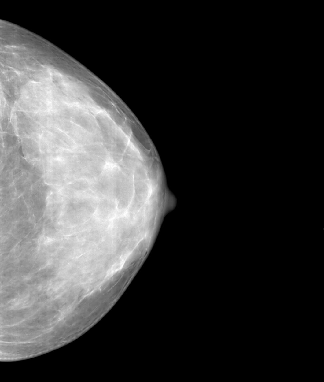 Företag upphör med bröstimplantat som försvårar mammografi