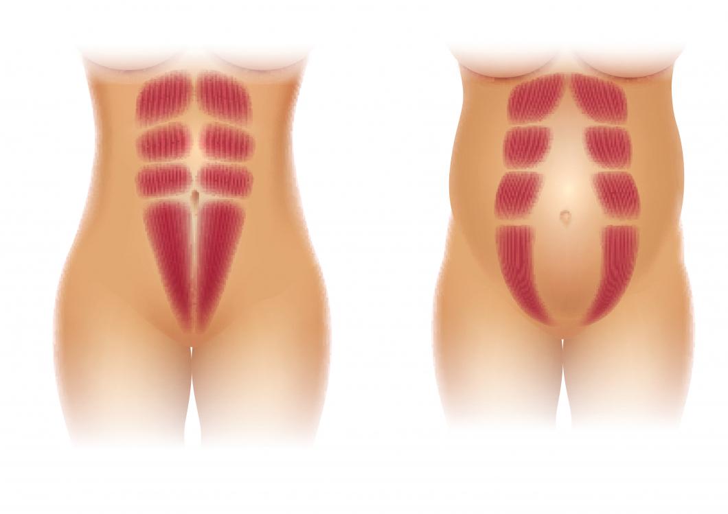 Hälften av regionerna opererar inte kvinnor med diastas