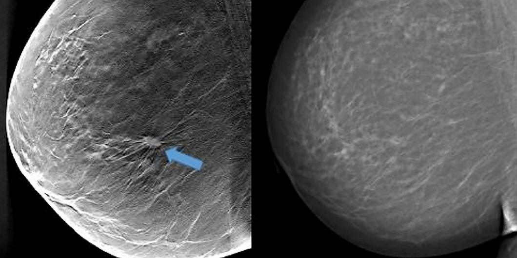 Med 3D hittas fler tumörer