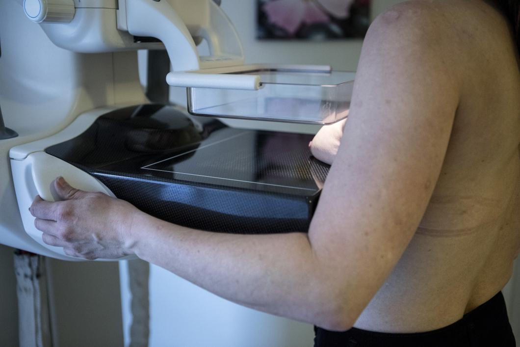 Vill att åldersgränsen tas bort för mammografi