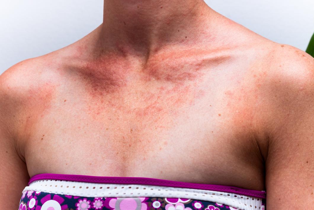Ovanlig men farlig hudcancer allt vanligare i Sverige