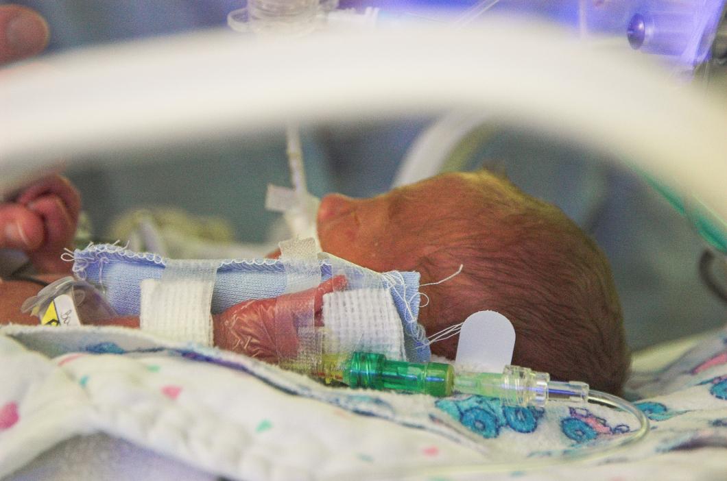 För tidig födsel ökar risken för autism
