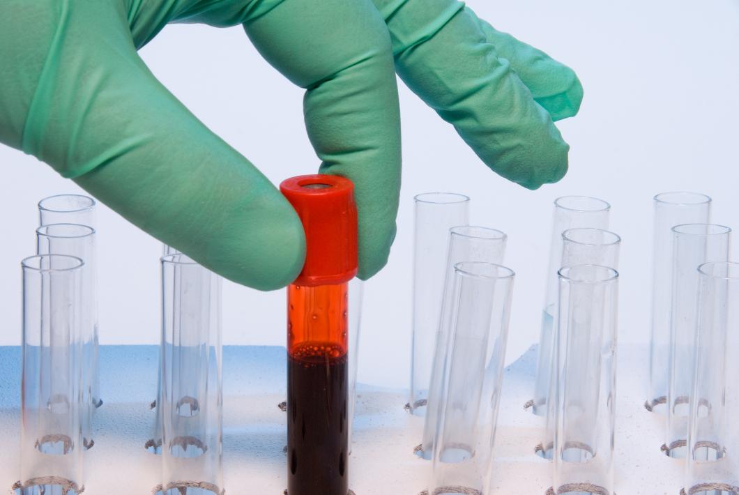 Blodprov säkert sätt att upptäcka vissa kromosomavvikelser hos foster