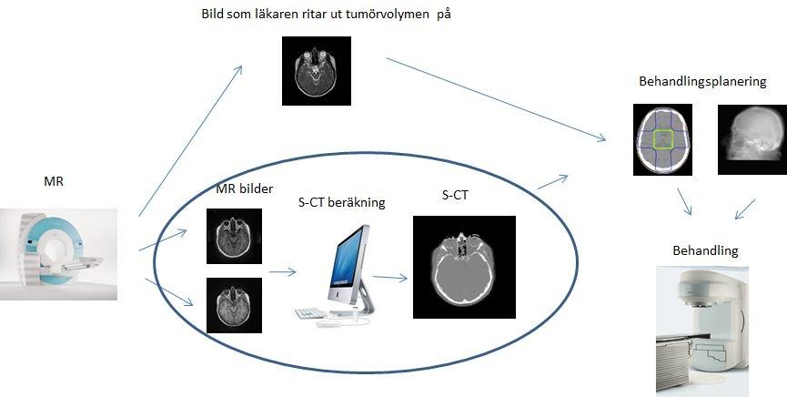 Ny metod ska ge mer precis strålbehandling