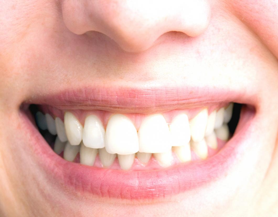 Tandköttsproblem kan göra det svårare att bli gravid