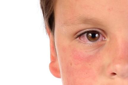 Utbrott av mässling har orsakat 30 dödsfall