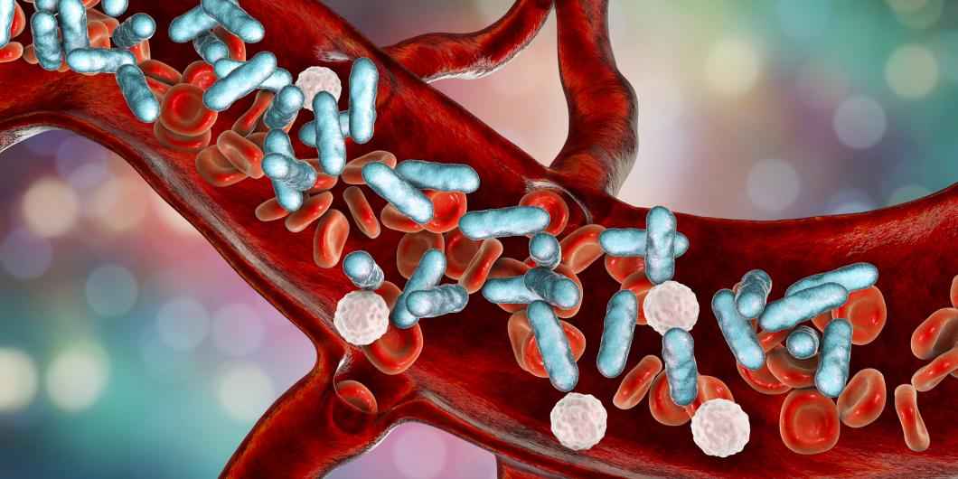 Få patienter fick rätt behandling vid sepsis