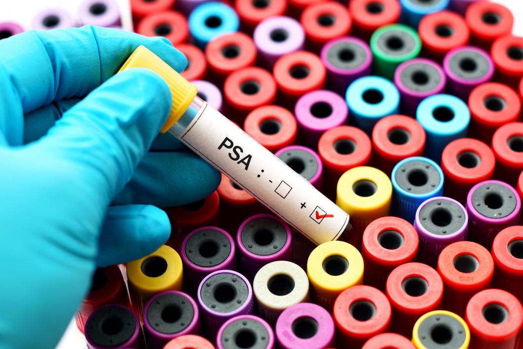 Fortsatt nej till screening för prostatacancer