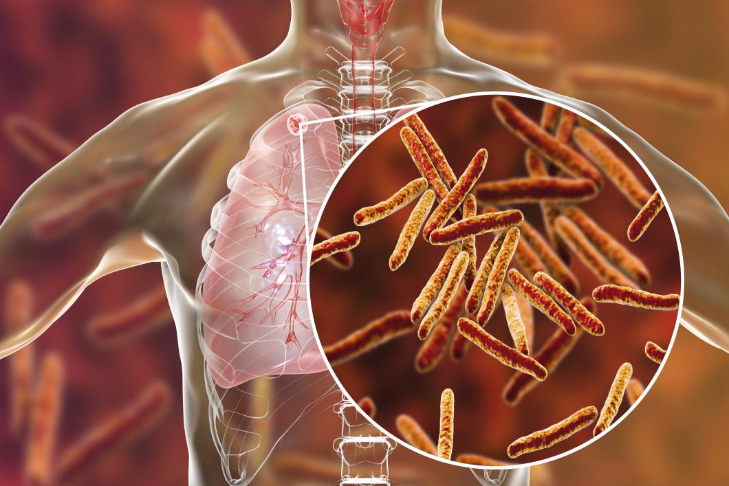 Tuberkulosfallen fortsätter minska