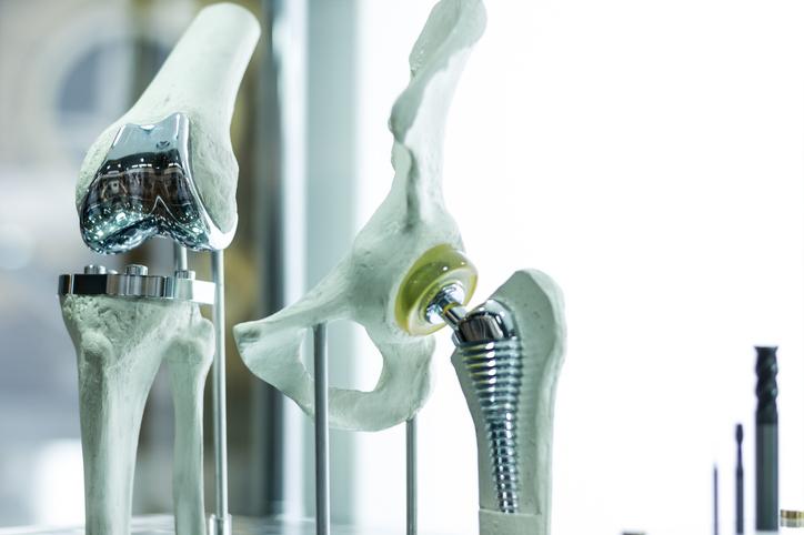Vädjar till regeringen: Gör det enklare att spåra implantat