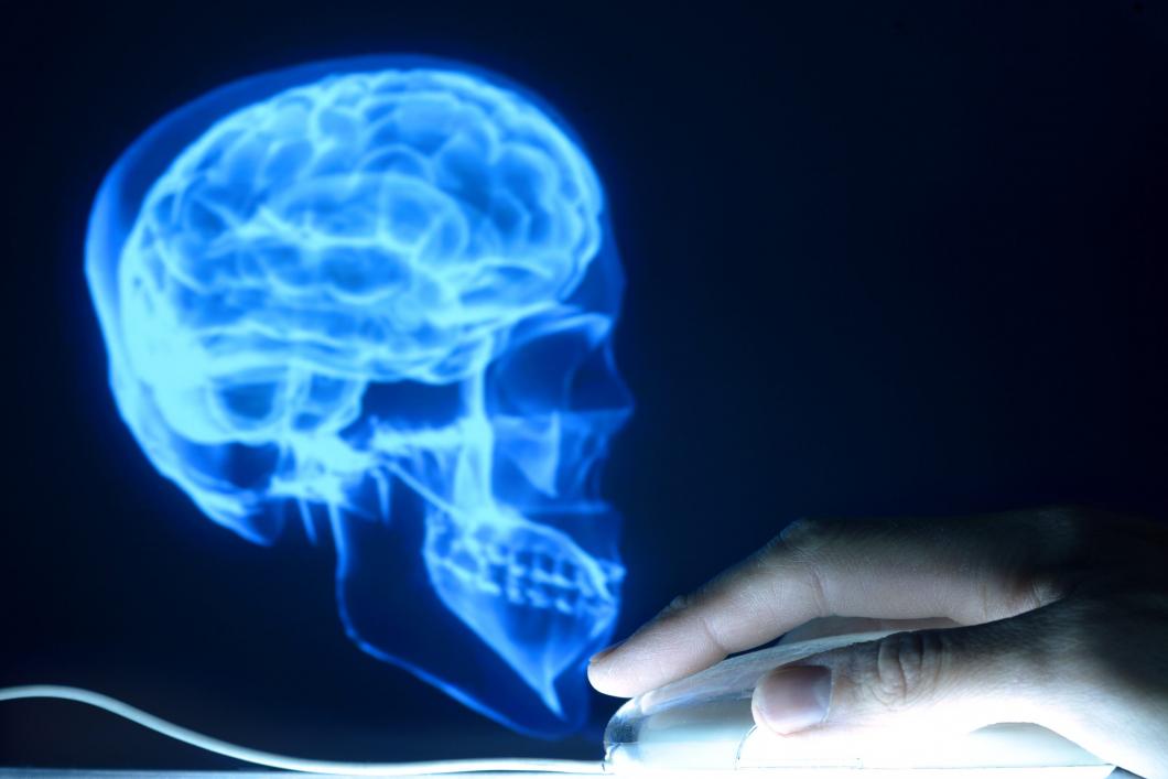 Röntgensjuksköterska varnas för skallbild på Facebook
